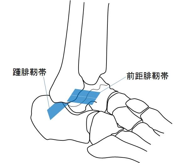 ねんざ 足首